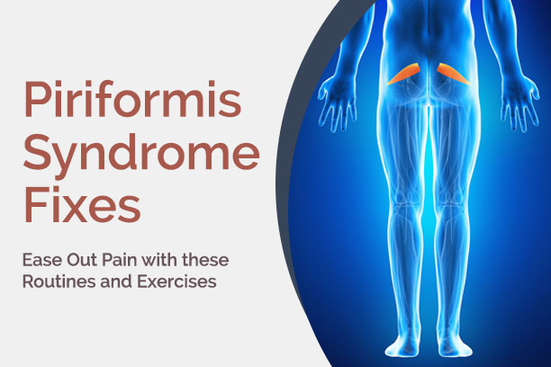 piriformis-syndrome-fixes