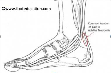 5-Minute Achilles Tendonitis Treatment and Exercises