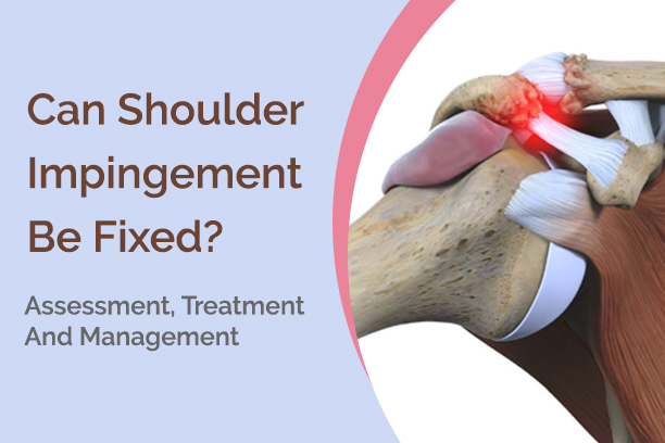 shoulder-impringement